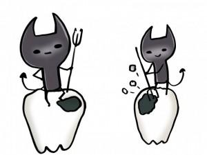 虫歯の原因と放置